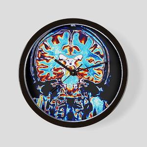Coloured MRI scans of the brain, corona Wall Clock
