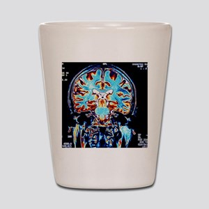 Coloured MRI scans of the brain, corona Shot Glass