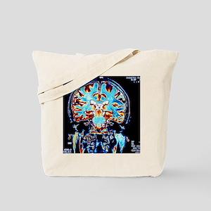 Coloured MRI scans of the brain, coronal  Tote Bag