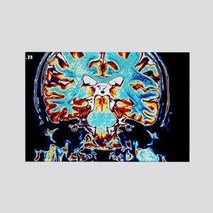 Coloured MRI scans of the brain,  Rectangle Magnet