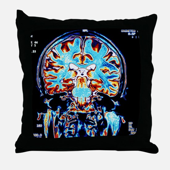 Coloured MRI scans of the brain, coro Throw Pillow