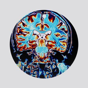 Coloured MRI scans of the brain, co Round Ornament