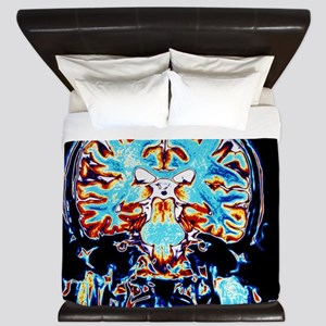 Coloured MRI scans of the brain, corona King Duvet