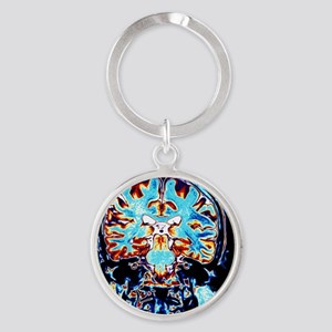 Coloured MRI scans of the brain, co Round Keychain