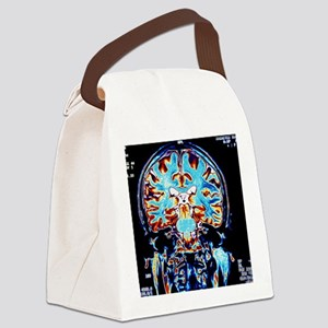 Coloured MRI scans of the brain,  Canvas Lunch Bag