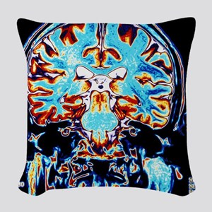 Coloured MRI scans of the brai Woven Throw Pillow