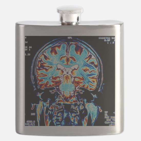 Coloured MRI scans of the brain, coronal vie Flask