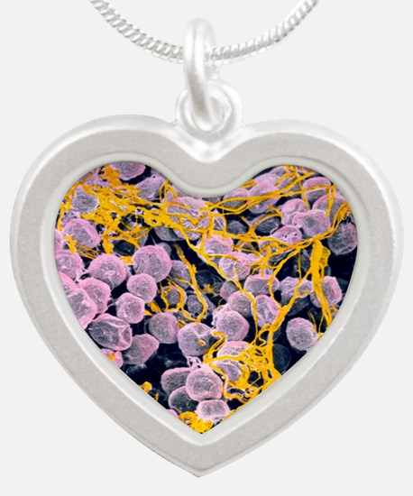 Coloured SEM of adipose tiss Silver Heart Necklace