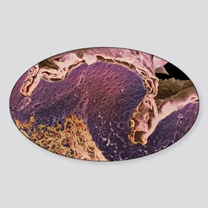 Coloured SEM of a section through s Sticker (Oval)