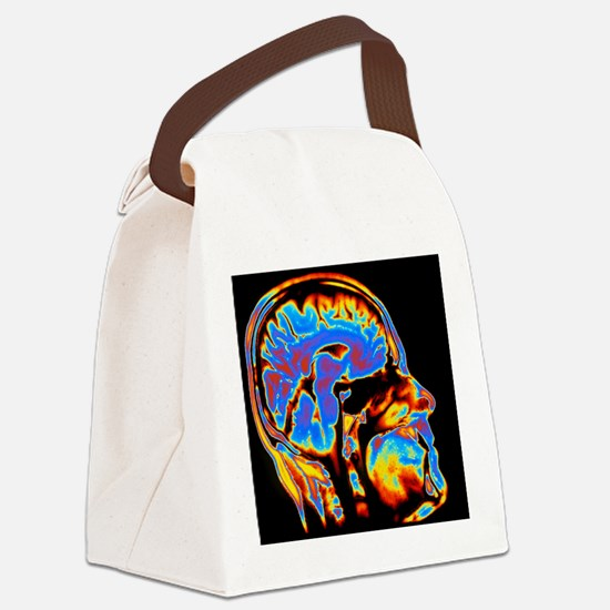 Coloured CT scan of the brain in  Canvas Lunch Bag