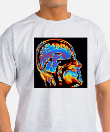 Coloured CT scan of the brain in hea T-Shirt