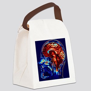 Coloured MRI scan of brain in sag Canvas Lunch Bag