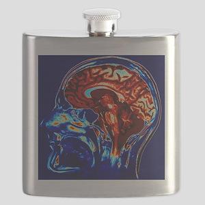 Coloured MRI scan of brain in sagittal se Flask