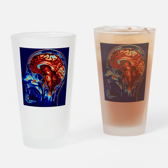Coloured MRI scan of brain in sagit Drinking Glass