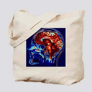 Coloured MRI scan of brain in sagittal se Tote Bag