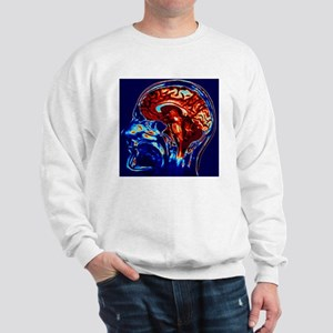 Coloured MRI scan of brain in sagittal  Sweatshirt