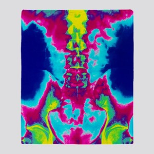 Coloured X-ray of normal lumbar spin Throw Blanket