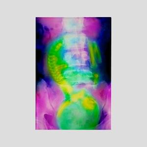 Coloured X-ray of full term foetu Rectangle Magnet
