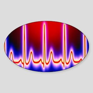 Computer artwork of healthy ECG tra Sticker (Oval)