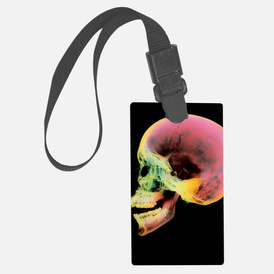 Coloured X-ray of a human skull  Luggage Tag
