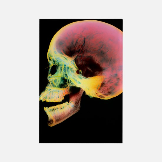 Coloured X-ray of a human skull s Rectangle Magnet