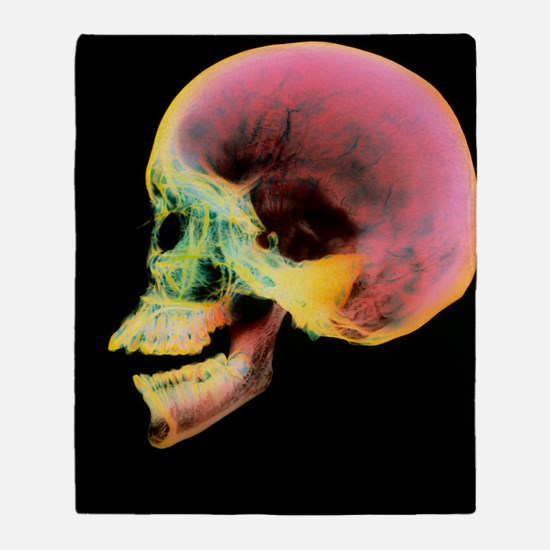 Coloured X-ray of a human skull seen Throw Blanket