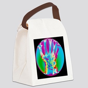 Coloured X-ray of bones in the wr Canvas Lunch Bag