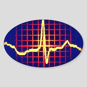 ECG trace Sticker (Oval)