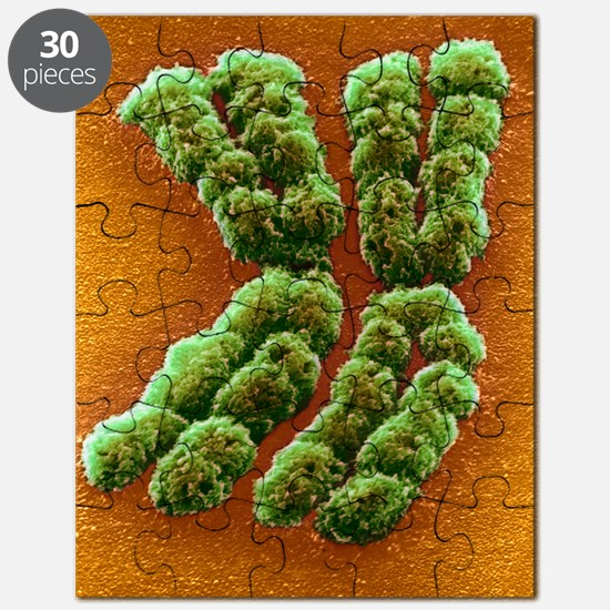 Doubled chromosome, SEM Puzzle