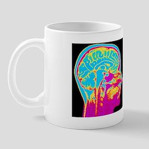 F/col MRI mid-sagittsal scan of normal  Mug