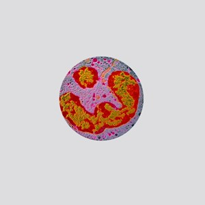False colour TEM of a single neutrophi Mini Button