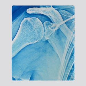 False-colour X-ray of the right shou Throw Blanket