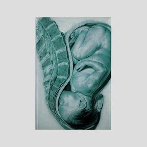 Full-term foetus at 40 weeks Rectangle Magnet