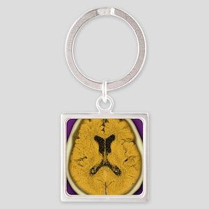 Healthy brain, CT scan Square Keychain