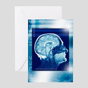 Healthy brain, MRI scan Greeting Card