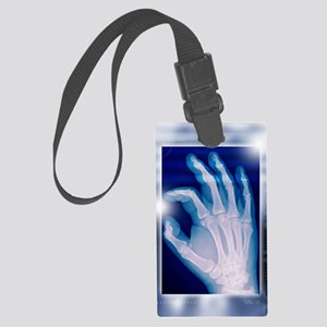Healthy hand, X-ray Large Luggage Tag