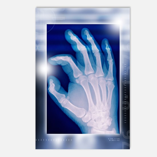 Healthy hand, X-ray Postcards (Package of 8)