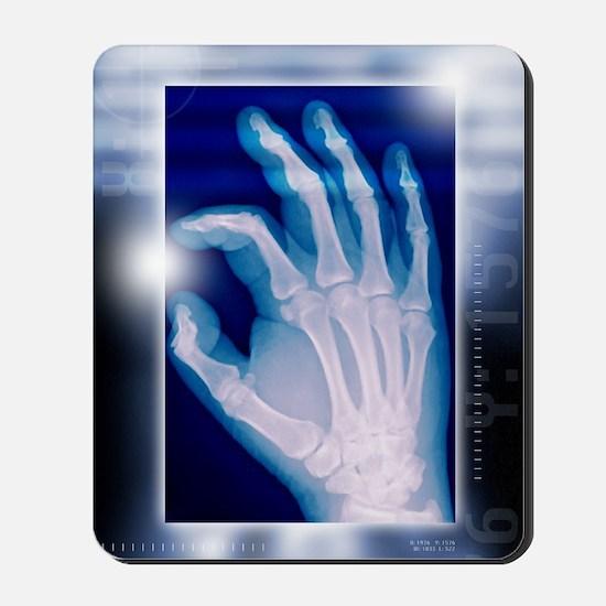 Healthy hand, X-ray Mousepad