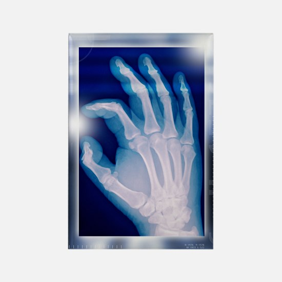 Healthy hand, X-ray Rectangle Magnet
