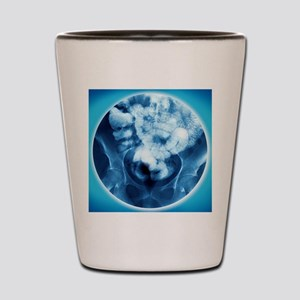 Healthy small intestine, barium enema Shot Glass
