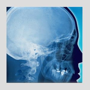 Healthy skull, coloured X-ray Tile Coaster