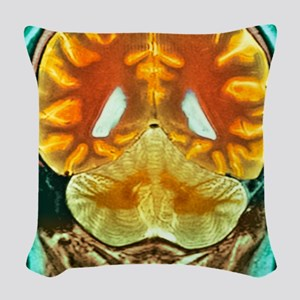 Healthy brain, MRI scan Woven Throw Pillow