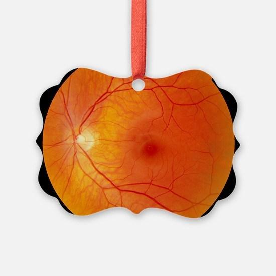 Healthy retina Ornament