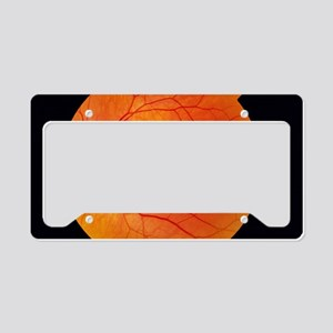 Healthy retina License Plate Holder