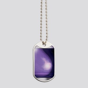 Healthy breast, X-ray Dog Tags
