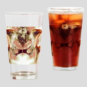 Healthy hip bones, X-ray Drinking Glass