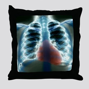 Healthy heart and lungs, X-ray Throw Pillow