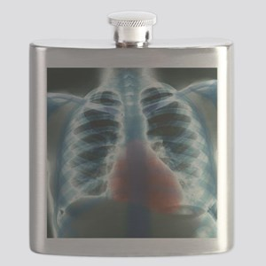 Healthy heart and lungs, X-ray Flask