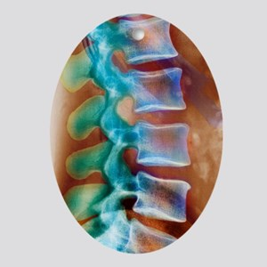Healthy lower spine, X-ray Oval Ornament