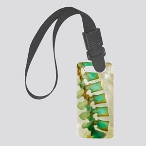 Healthy lower spine, X-ray Small Luggage Tag